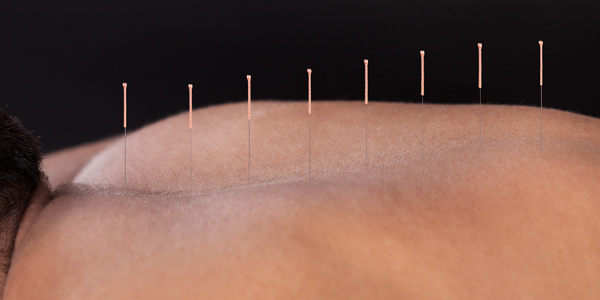 Acupuncture-Treat