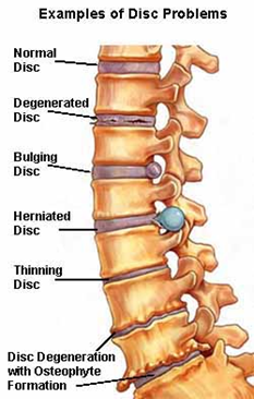 spinal-works