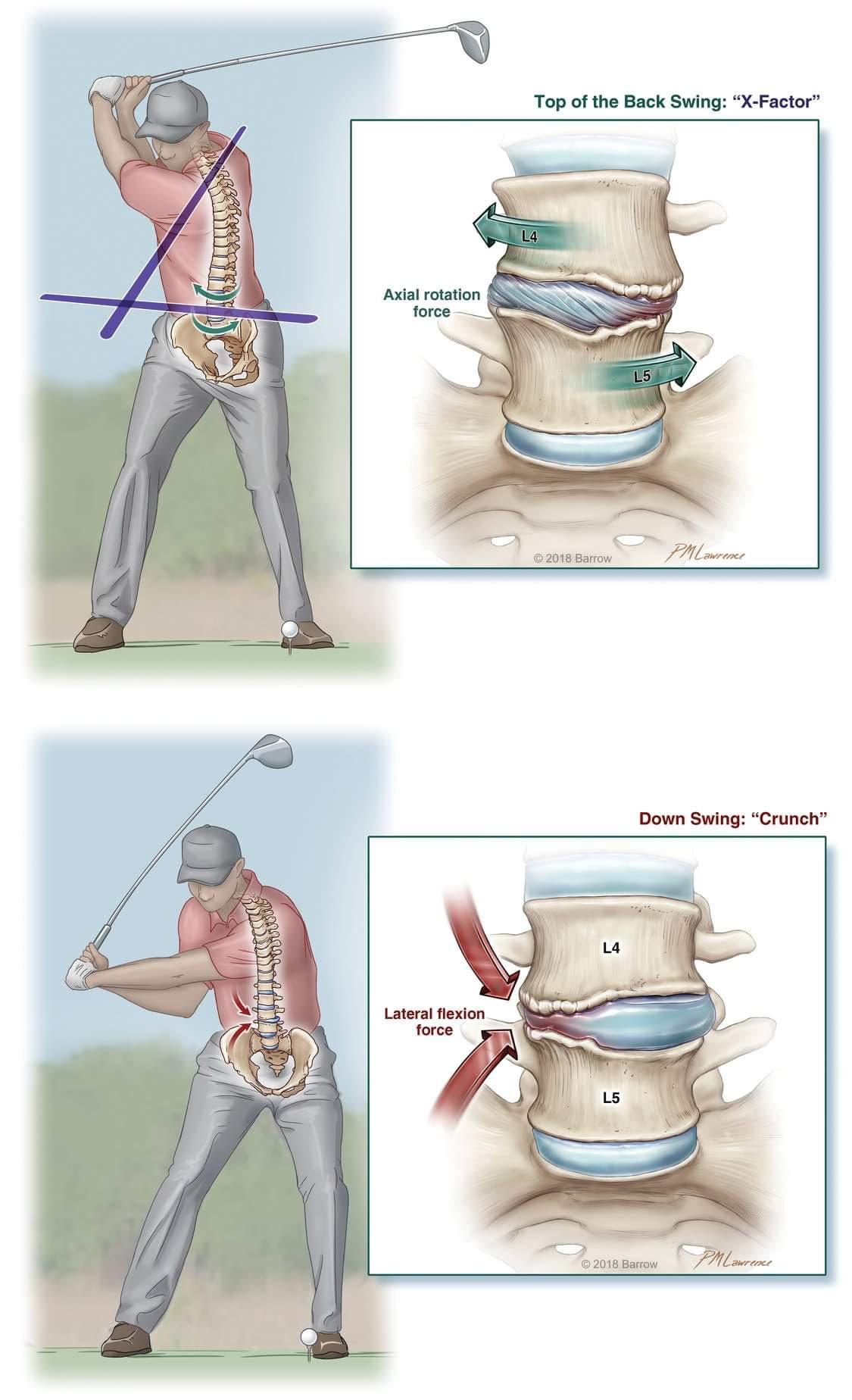 Back Swing Exercises