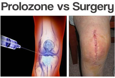 prolozone injection vs knee
