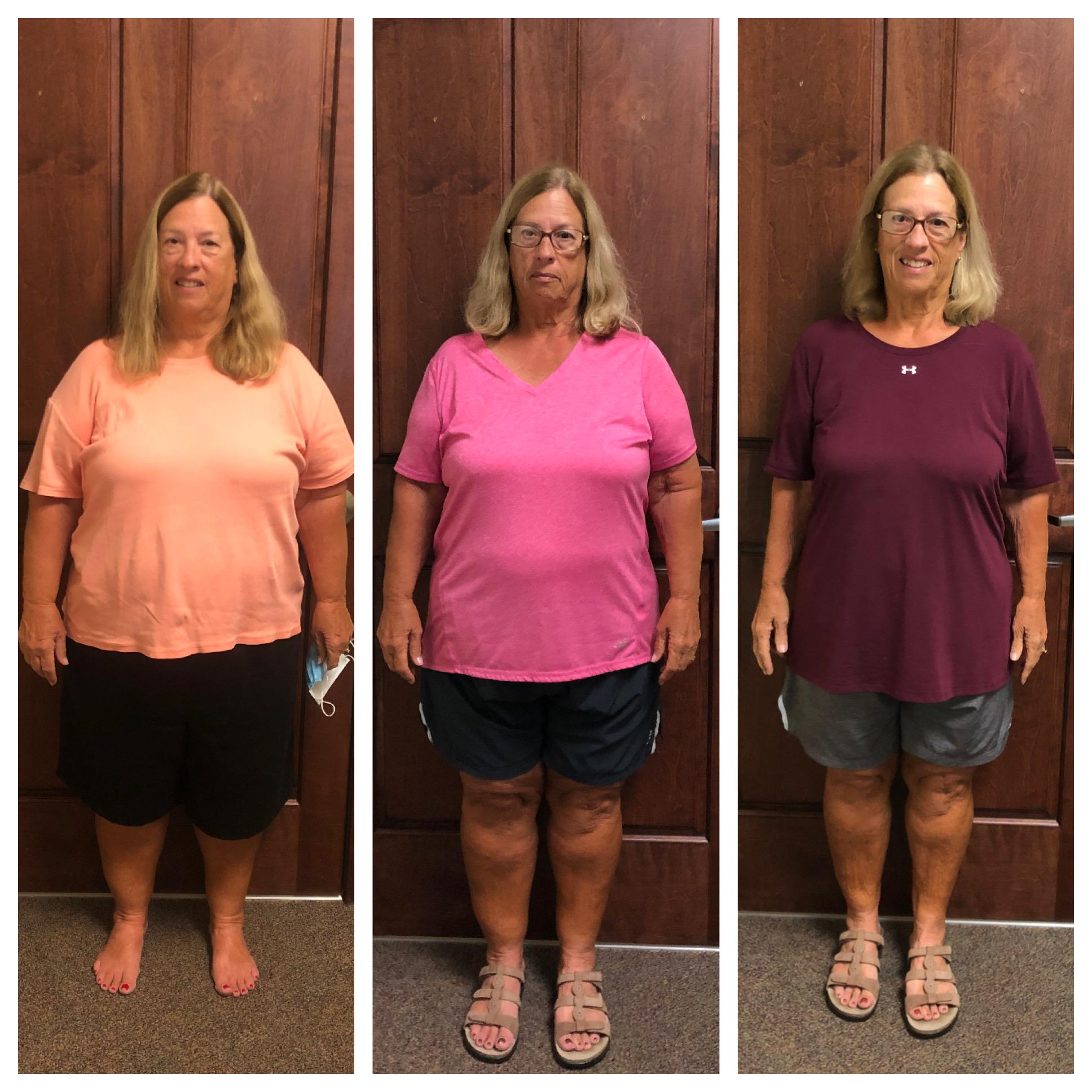 Weight Loss Supervised Program